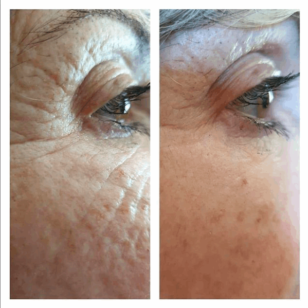 FAA before and after | The Glow Clinic | Forget about Age