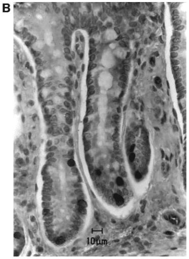 益生菌抑制癌細胞大小