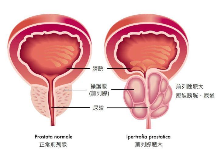 攝護腺肥大