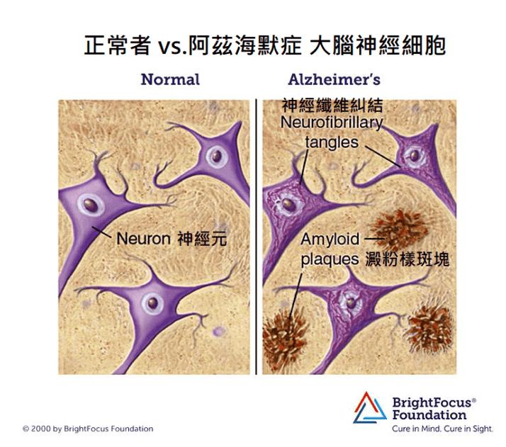 阿茲海默症病因