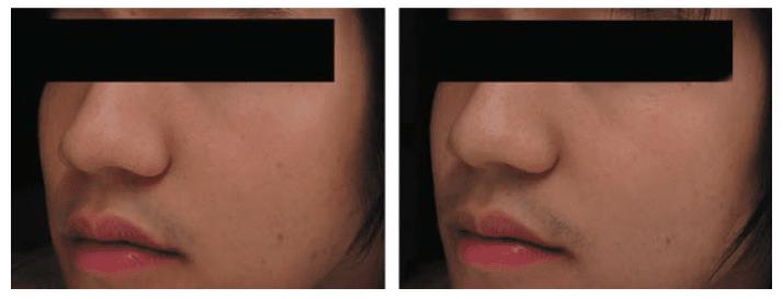 穀胱甘肽美白皮膚保健功效