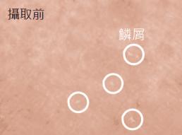 神經醯胺功效:改善皮膚鱗屑
