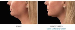 coolsculpting.cool.mini.double.chin.stamford.ct.female.before.after