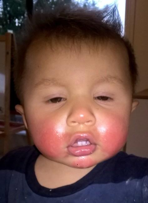 Allergies reacion