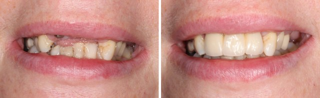dental implants at The Guild Practice