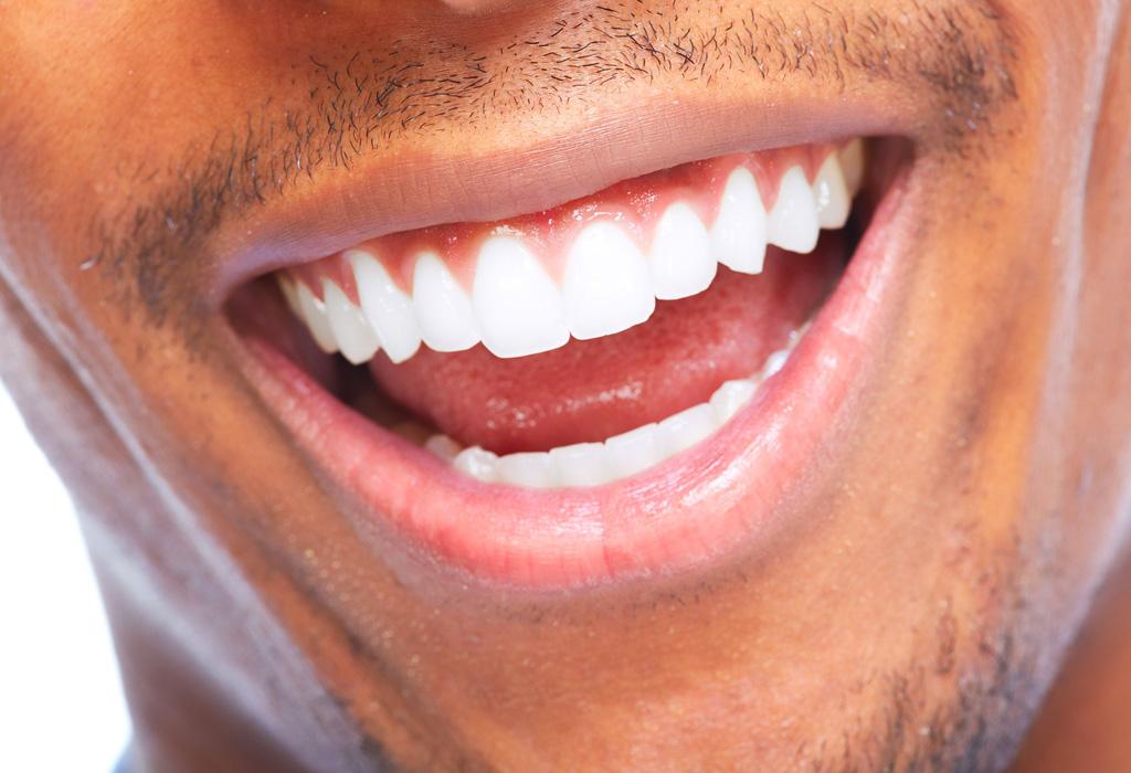 Antes de que te pongas carillas en los dientes debes saber esto - ch