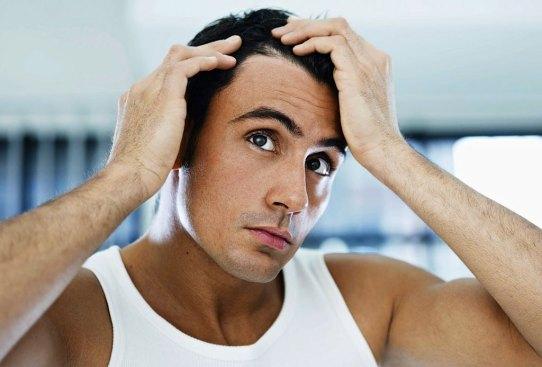 Estas son las posibles razones de la caída de tu pelo, ¿las conocías? - perder-pelo-3-300x203