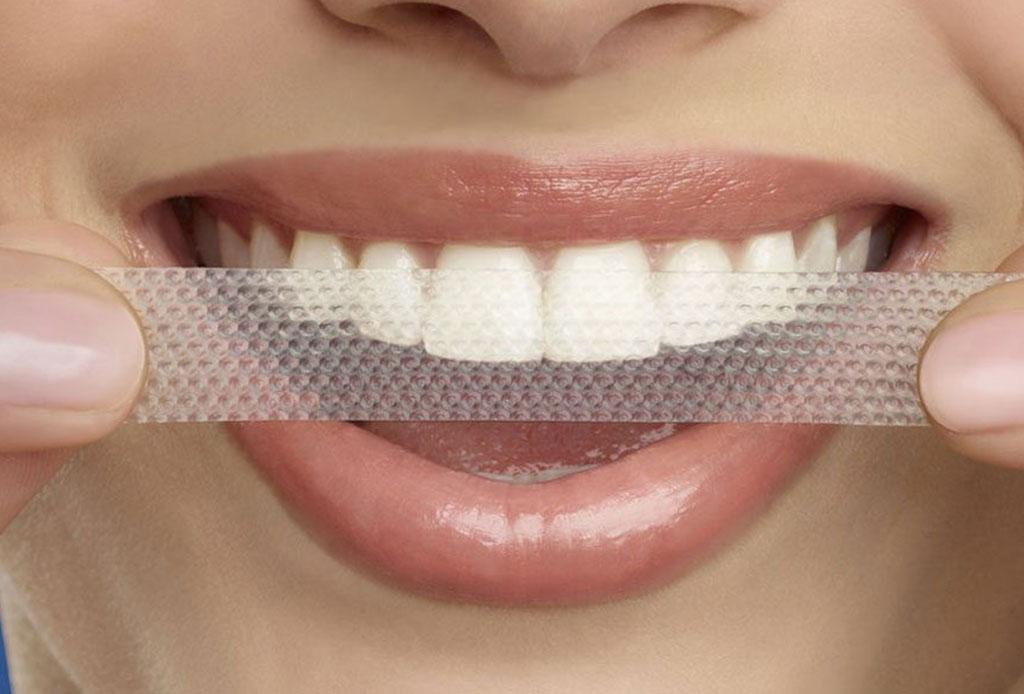 mejor blanqueamiento dental farmacia