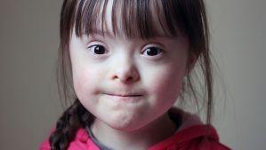 Asociaciones para ayudar a personas con Síndrome de Down