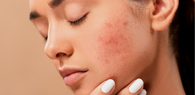 Rutina para evitar el maskne ¡Dile adiós a las imperfecciones en tu piel! - sabrina-39