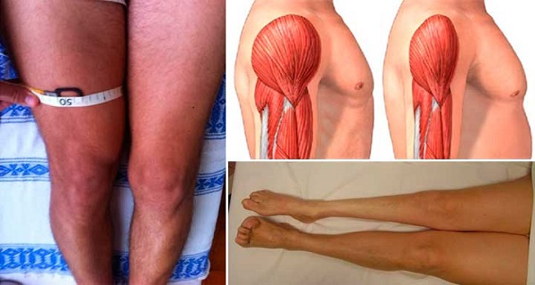 If You Have Muscle Atrophy Disease You Need To Do This