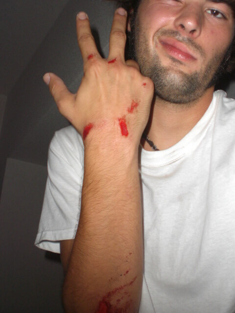 Derek Freal injured in Tokyo -- still has the scars today