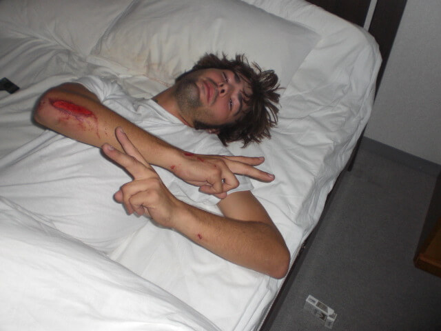 Derek Freal injured and bleeding on his bed in Tokyo, Japan
