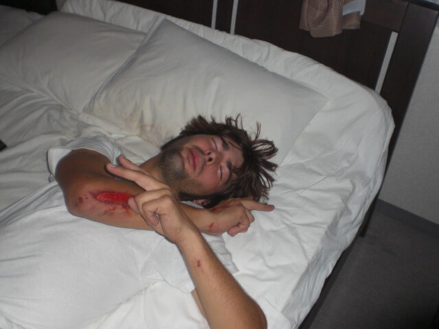 Derek Freal injured and bleeding on his bed in Tokyo, Japan