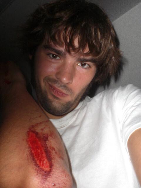 Derek's travel injury #89
