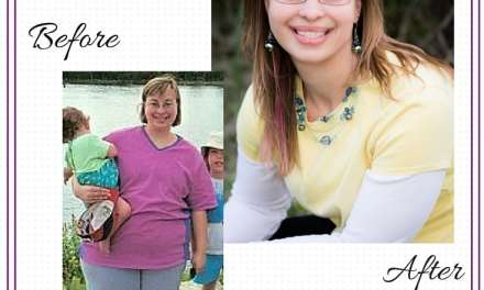 100 lb Weight Loss: Frequently Asked Questions (FAQ)