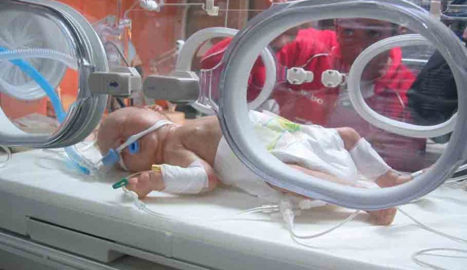 Baby in Special Care Baby Unit