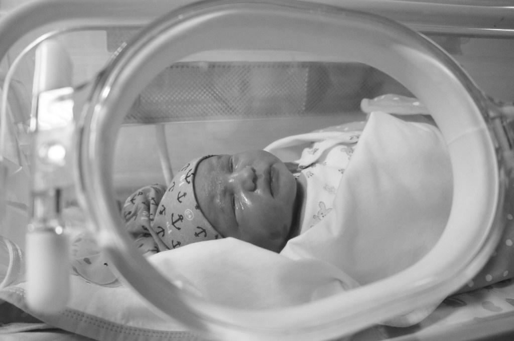 infant jaundice, baby with cap on head in incubator