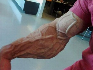 Pictures of weird veins and skin conditions - great inspiration for the texture of my demons