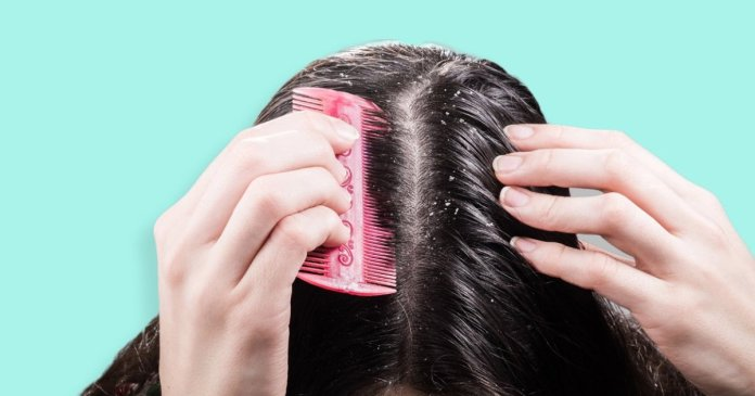 how to get rid of dry scalp and dandruff