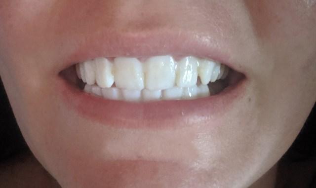 Temporary Teeth