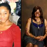 Kechi Okwuchi: Sosoliso Survivor Tells Her Recovery Story On Strength and Determination