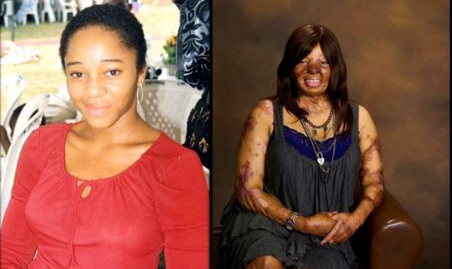 Kechi Okwuchi Survivor of sosoliso plane crash