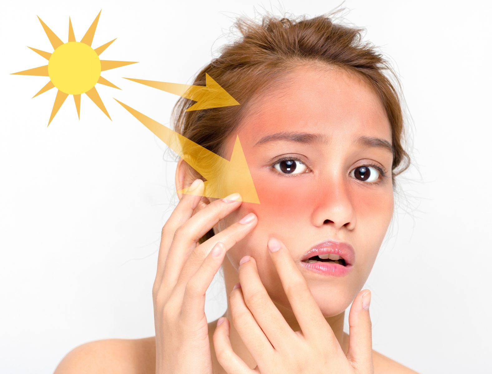 Here'S How UV Rays Damage Shows Up On different Skin Types