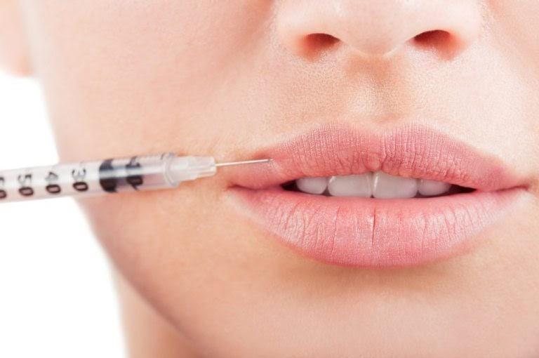 lip filler treatment in London