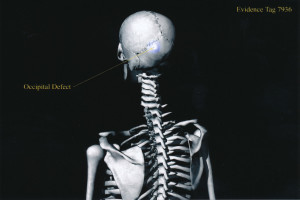 Exhibit-399-Graphic-Skeleton-Occipital-Defect-1024x683