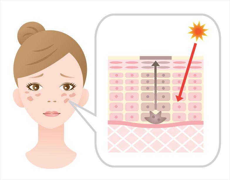 El problema de las manchas en la piel