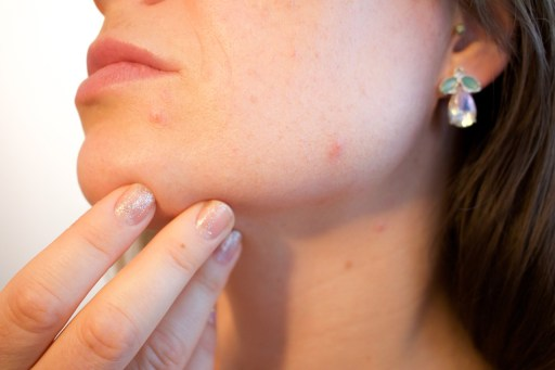 acne stress sign