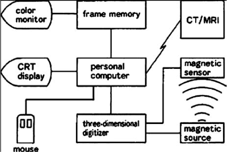 Neuronavigation: geneology, reality, and prospects in