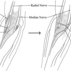 Radial Nerve Diagram Pioneer Avh X2700bs Wiring Median To Transfer For Treatment Of Palsy View In Gallery Illustration