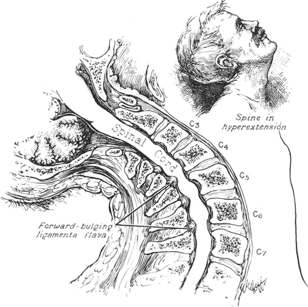 The Syndrome Of Acute Central Cervical Spinal Cord Injury