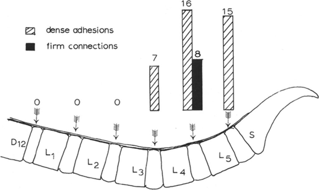 Intradural Herniated Lumbar Disc in: Journal of
