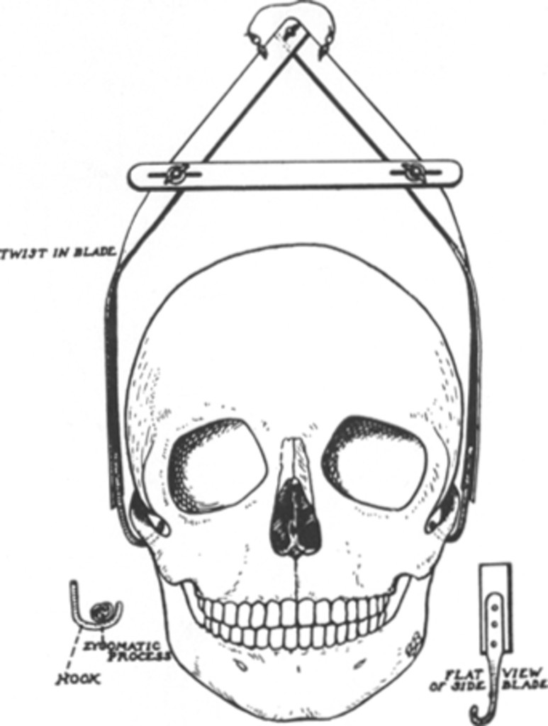 History of skeletal traction in the treatment of cervical