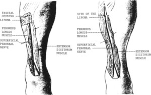 Superficial peroneal nerve entrapment in: Journal of