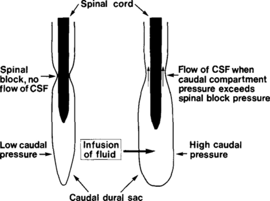 Clinical recording of pressure on the spinal cord and