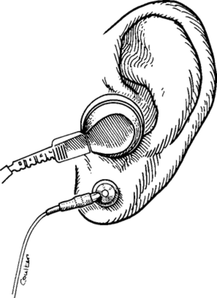 Intraoperative monitoring of brain-stem auditory evoked