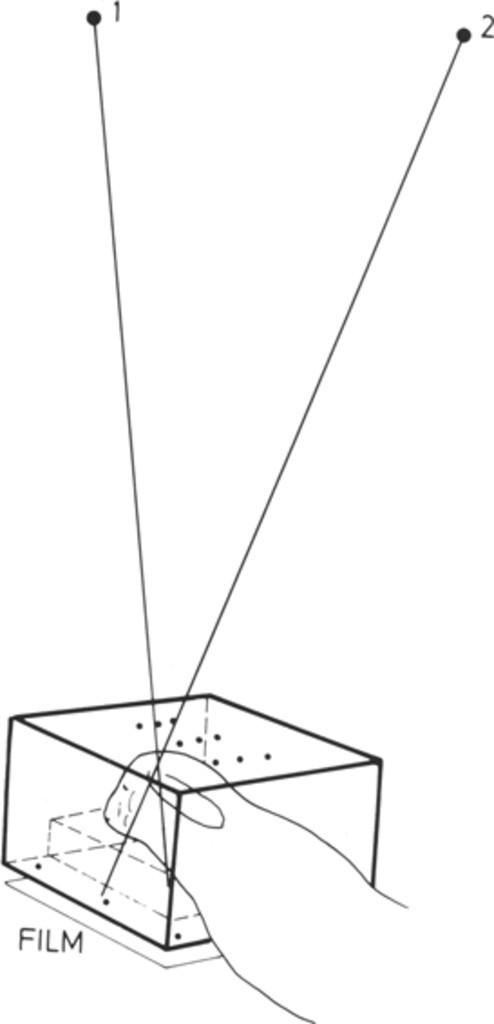 Roentgen stereophotogrammetric analysis of neurocranial