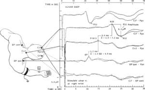 Somatosensory evoked potentials and neurological grades as