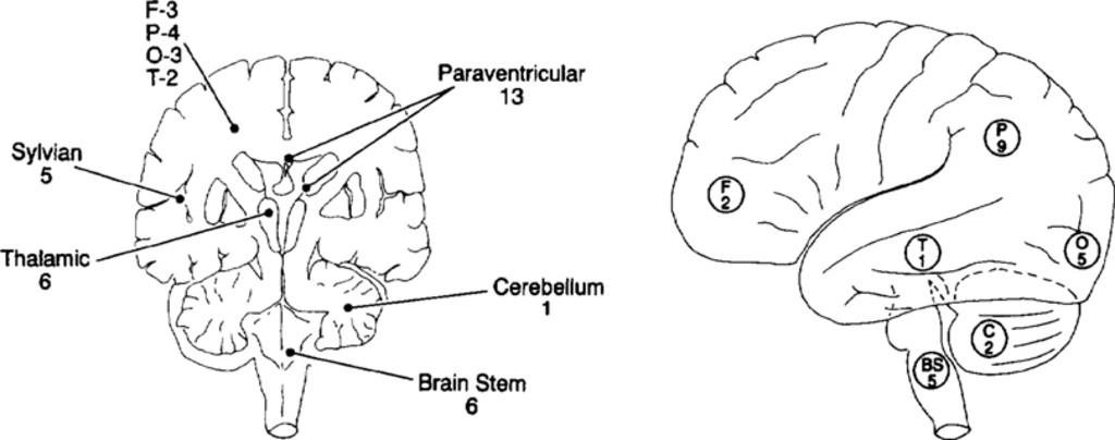 Microsurgery for 67 intracranial arteriovenous