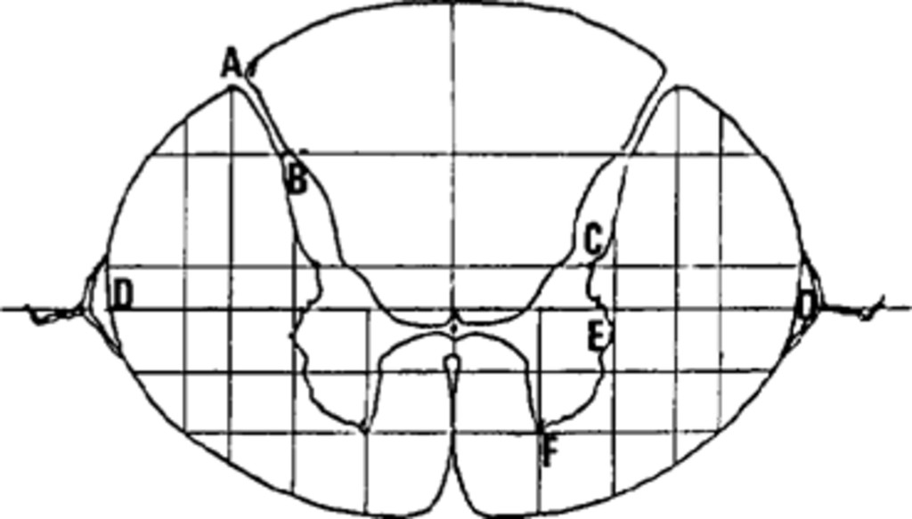 Percutaneous cervical cordotomy: a review of 181