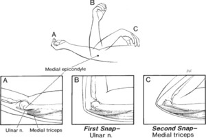 Unrecognized dislocation of the medial portion of the