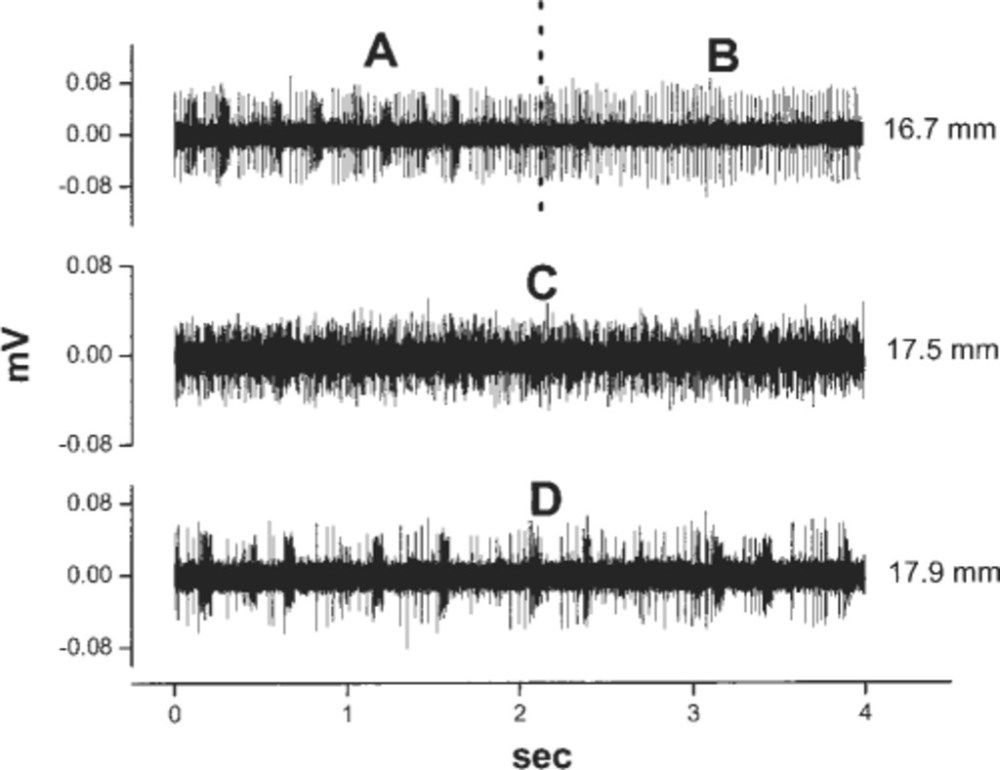 medium resolution of  samples of microelectrode recordings obtained in the patient in case g the first tracing sample a shows high frequency bursts and singlet firing