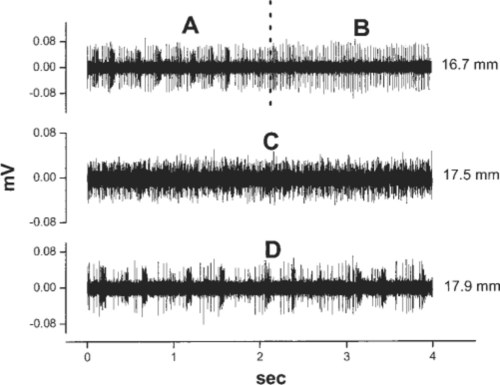 small resolution of  samples of microelectrode recordings obtained in the patient in case g the first tracing sample a shows high frequency bursts and singlet firing