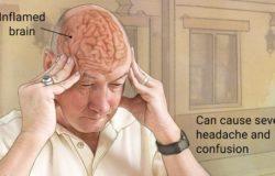 It is possible to avoid Encephalitis (Chamki Fever), Identify symptoms.