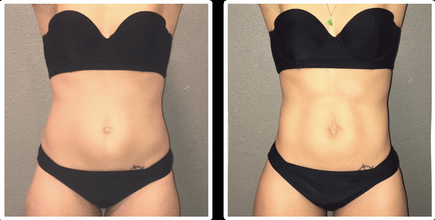 Before and After picture of a female's abdomen after non-invasive weight reduction treatments from The Karlfeldt Center.