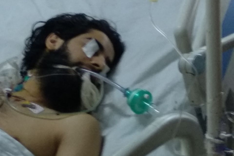 Injured militant interned at SKIMS: Police